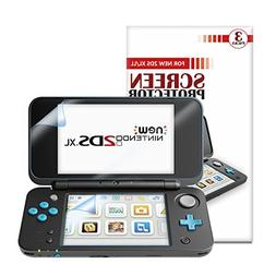 NEW Nintendo 2DS XL Screen Protector ], Keten Full Coverage